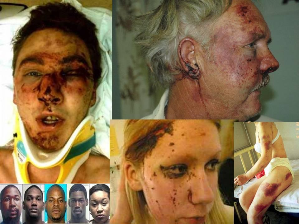 Zuid Afrikaanse toestanden nu ook in Nederland-Vrouw (85) meerdere keren tegen hoofd geschopt bij straatroof in Eindhoven Whites-beat