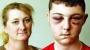 Was This Boy Beaten Senseless because He'sWhite?