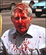 Bloodied white Zimbabwean