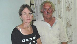 These are William and Annette Rogers, who were assaulted, whipped, and shot after Robert Mugabe supporters gave them two minutes to leave their property in Zimbabwe