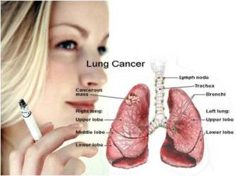 how to tell if you have smokers cough